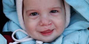 Cleft and Craniofacial Awareness and Prevention Month